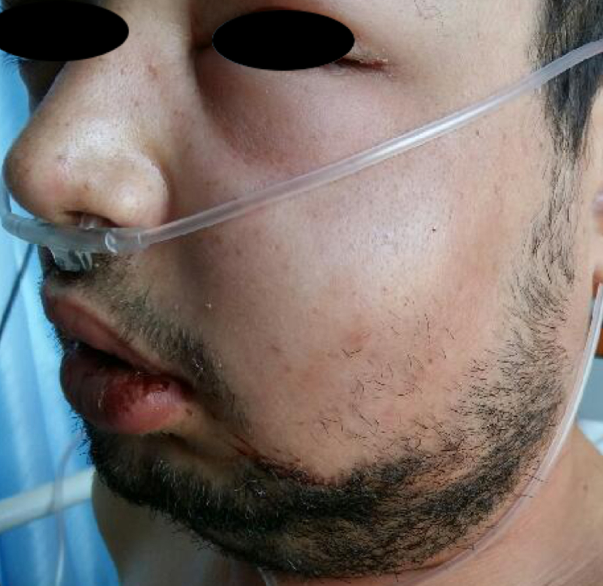 Congratulate, seems Treatment of facial cellulitis
